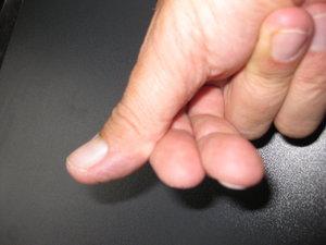 Double Thumb rechte Hand.JPG